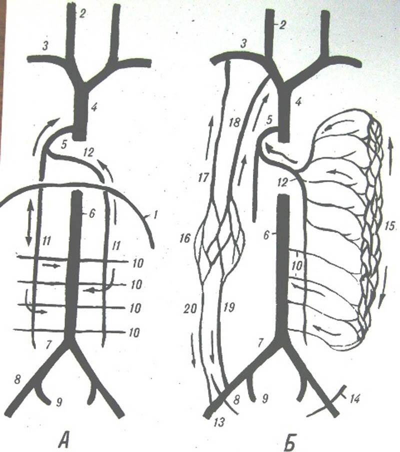 Анастомоз фото
