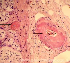Сосуды мозга при гипертонической болезни